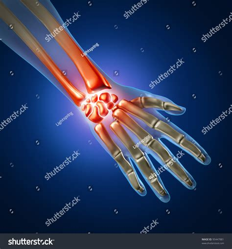 Human Hand And Wrist Pain Caused By Arthritis And Carpal